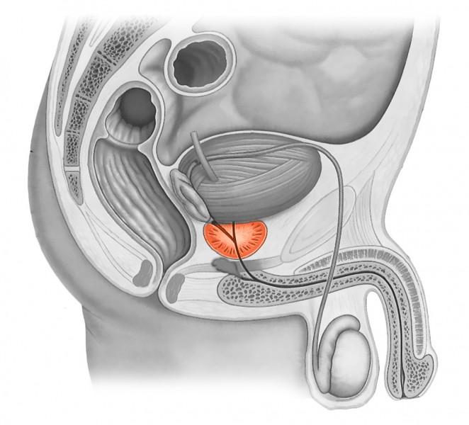 Низкий уровень тестостерона после простатита