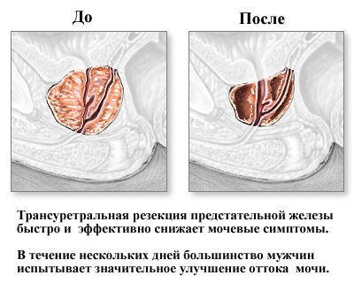 Аденома простаты лечение: ТУР
