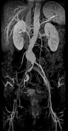 Брюшная аортограмма при опухоли забрюшинного пространства