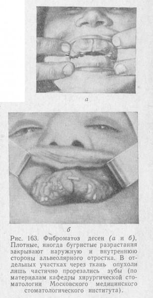 Фиброматозный узел