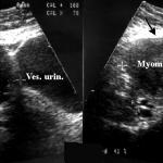 Фиброматозный узел матки