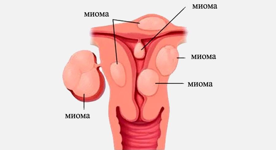 Женщины хотящие секса в узловой