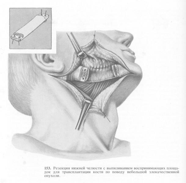 Резекция нижней челюсти с выпиливанием воспринимающих площадок