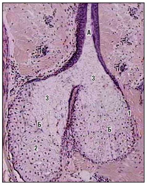 Аденома сальных желез