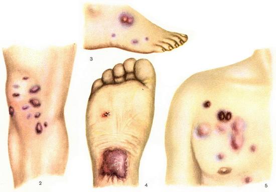 Синовиальная саркома мягких тканей