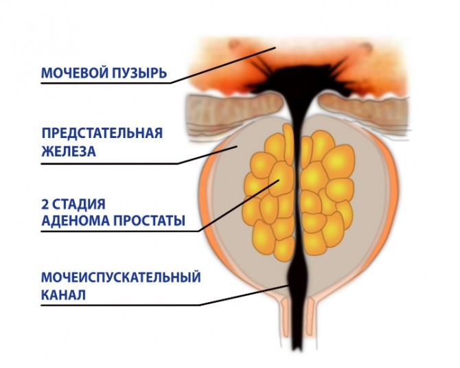 В анапе лечение простатита