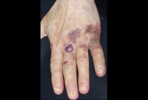 Саркома мягких тканей.Симптомы