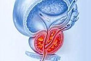 Простата симферополь лечение