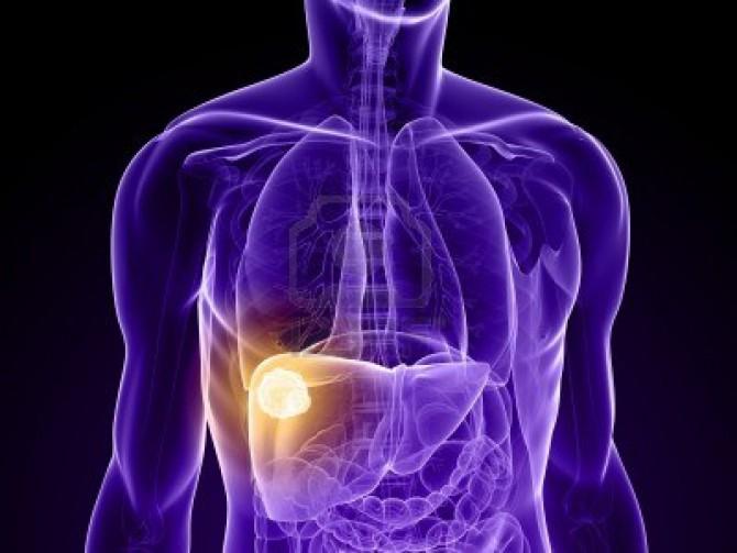 Гепатоцеллюлярная аденома печени