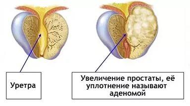 Заговор от рака предстательной железы
