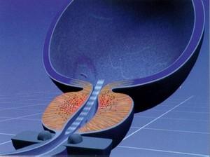 Гимнастика при аденоме предстательной железы