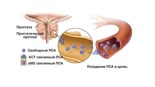 Степени рака простаты и прогноз