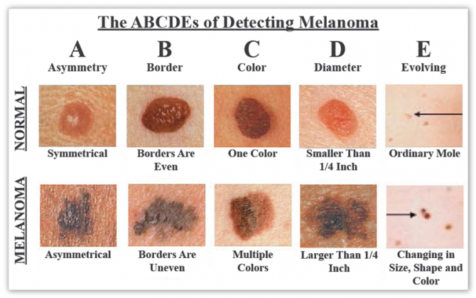 Как лечить меланому кожи?