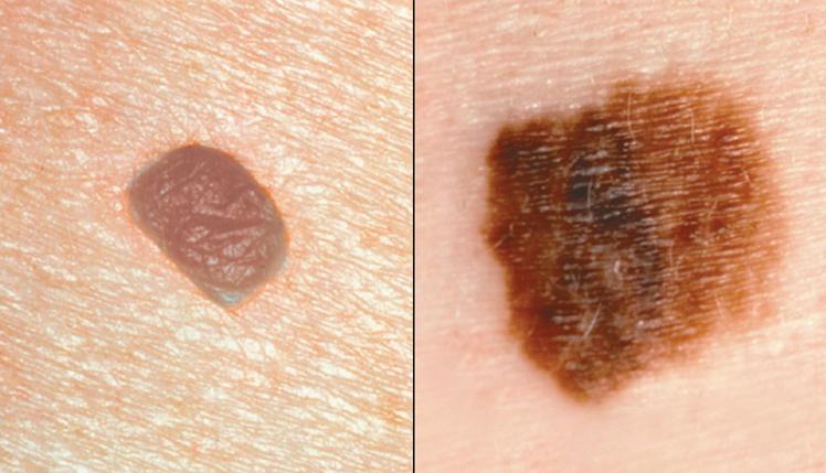 меланома фото стадии