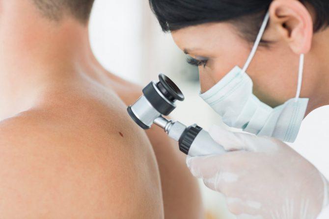 Диагностика меланомы кожы
