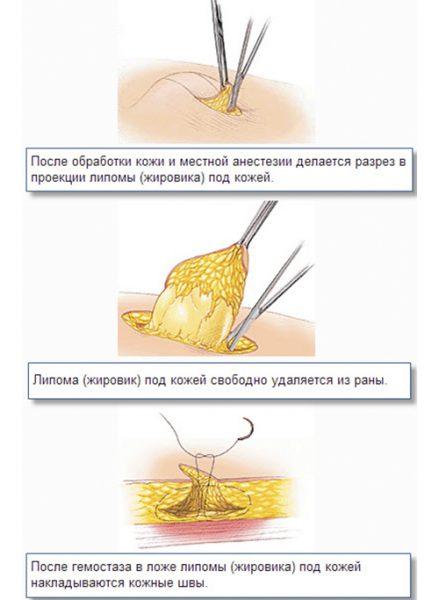 Удаления липомы