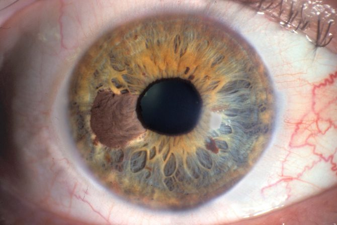 Меланома хориодеи глаза