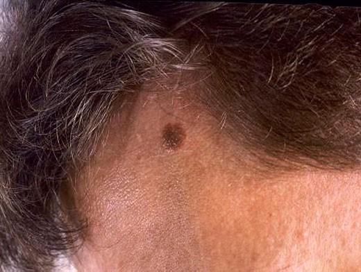 Меланома на голове
