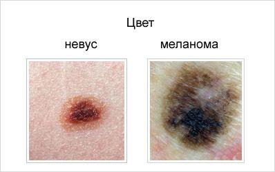 Отличие невуса от меланомы по цвету