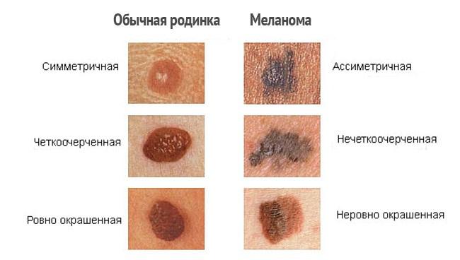 Родинка или меланома?