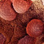 Нужна ли химиотерапия, если нет метастаз?