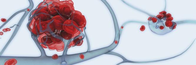 Как выглядят метастазы рака?