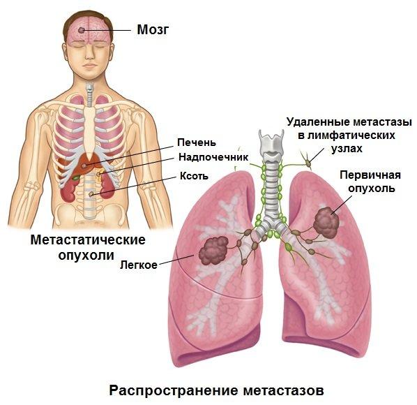 Общее описание онкологии