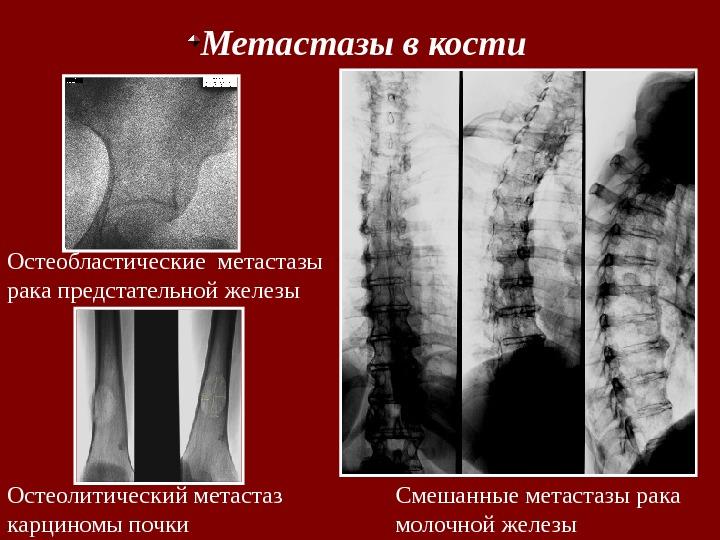 Операция при раке простаты с метастазами