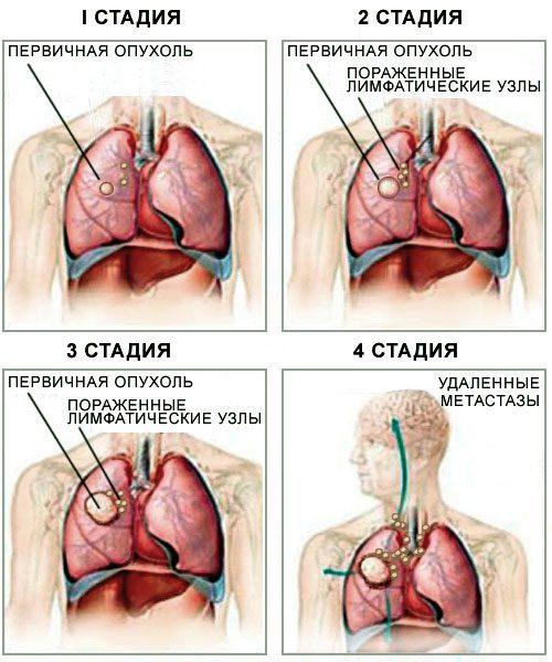 Рак 4 стадии с метастазами прогноз
