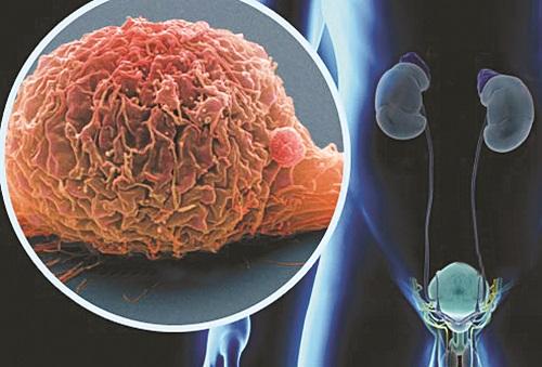 Метастазы в мочевом пузыре симптомы