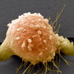 Рак 4 степени с метастазами.Сколько живут?
