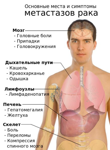Метастаз Вирхова