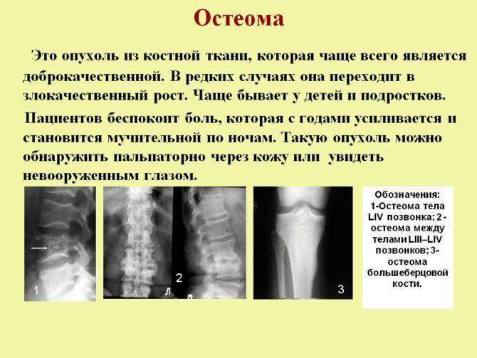 Остеома. Лечение