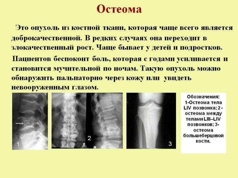 остеома лучезарного сустава