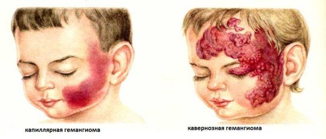Венозная опухоль