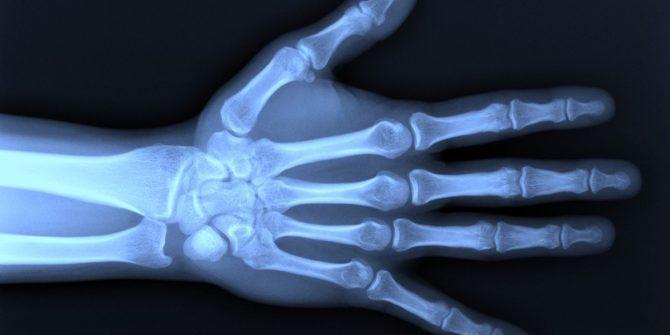 рентген лучезапястного сустава в норме