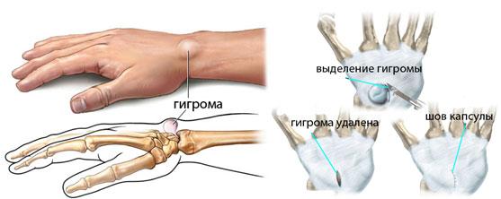 Гигрома кисти руки. Лечение народными средствами