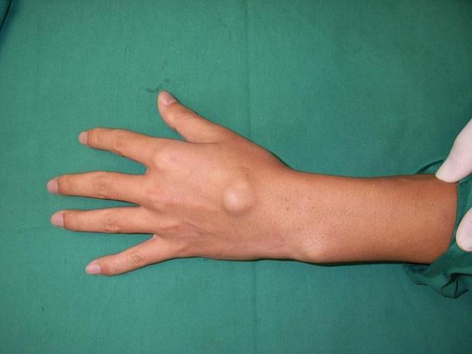 Шышечка на суставе кисти после травмы бандаж коленного сустава цена