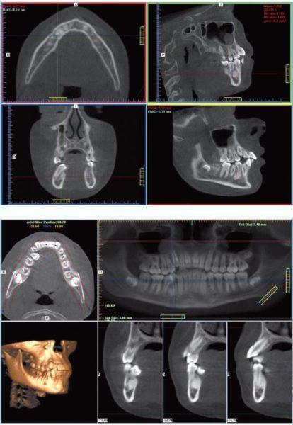 Остеома нижней челюсти. Причины