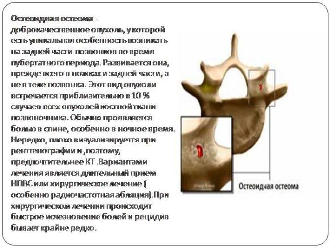 Остеоид - остеома