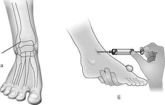 пункция голеностопного сустава методика