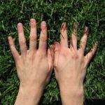 Гигрома на пальце руки