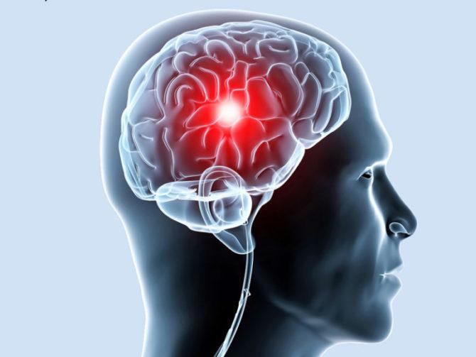 Гигрома головного мозга