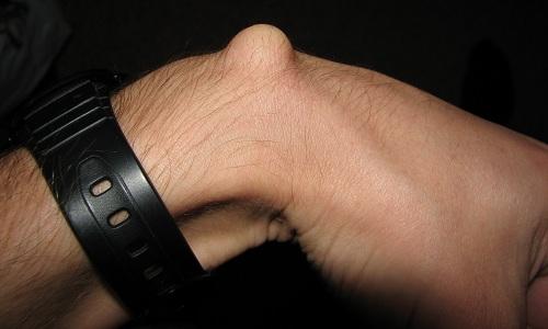 Гигрома кисти руки. Лечение