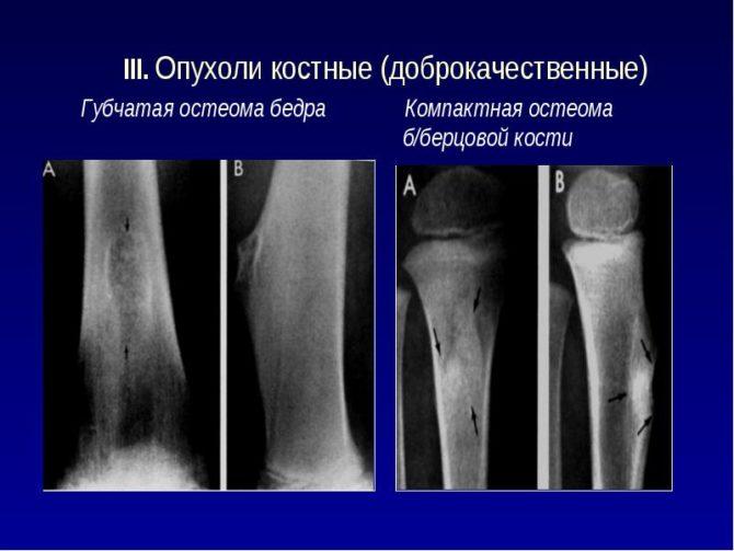 Остеома бедренной кости. Лечение