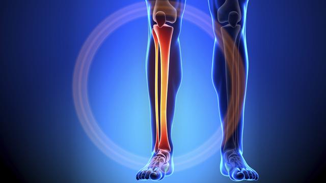 Остеома берцовой кости. Лечение
