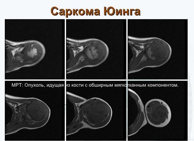Злокачественная опухоль у ребенка