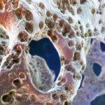 Может ли остеома рассосаться?