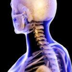 Остеома затылочной части. Другие виды остеом