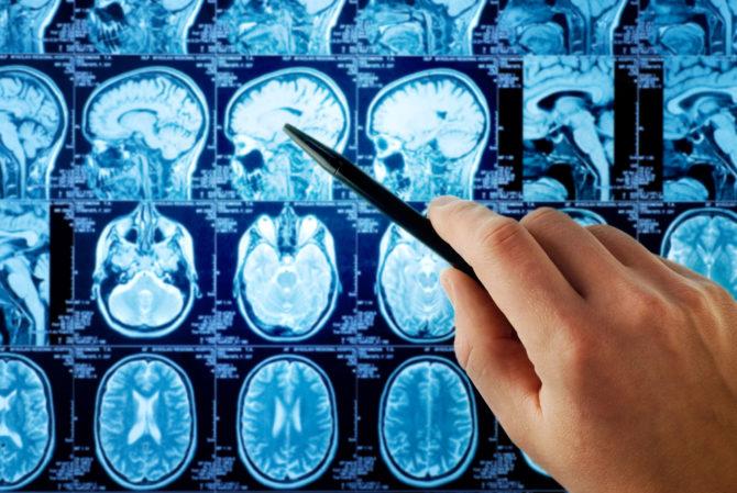 Клинические проявления опухолей